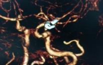Mổ kẹp túi phình động mạch não: Can thiệp sớm nhằm giảm nguy cơ tử vong