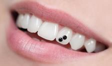 Cẩn trọng khi quyết định đính đá lên răng